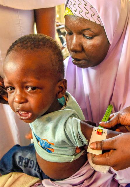 子ども50万人が栄養失調 ナイジ...