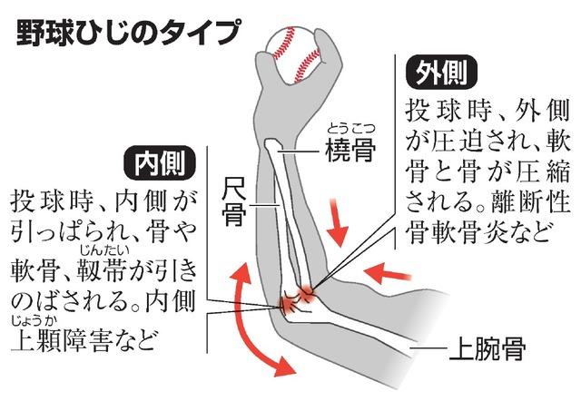 二の腕 外側 痛み