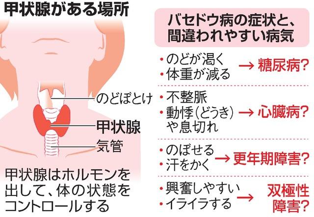 コロナ バセドウ 病 広報:甲状腺の病気をお持ちの方の新型コロナワクチン接種について