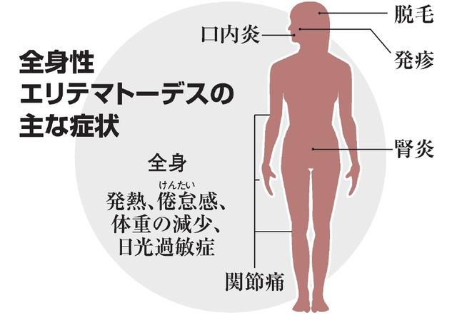 全身に起こる症状、難病のSLE 広がる治療薬の選択肢:朝日新聞デジタル
