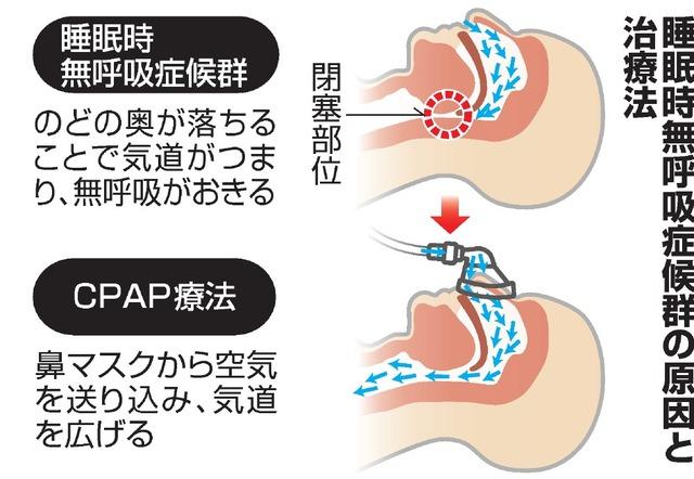 睡眠 時 無 呼吸 症候群 予防