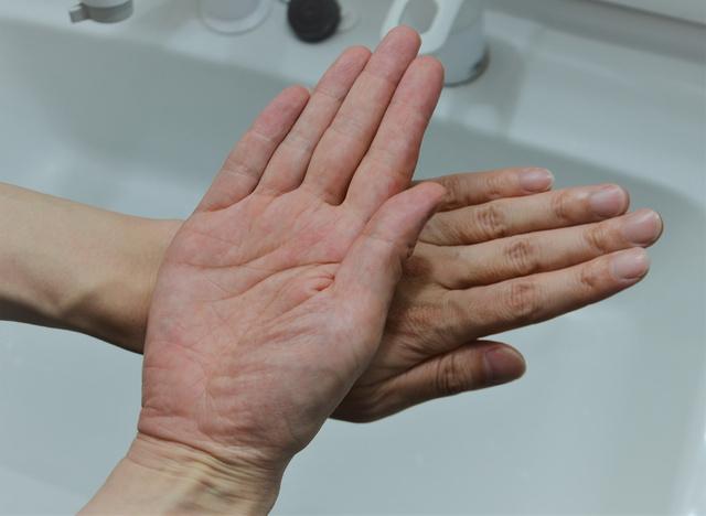 荒れる 手のひら