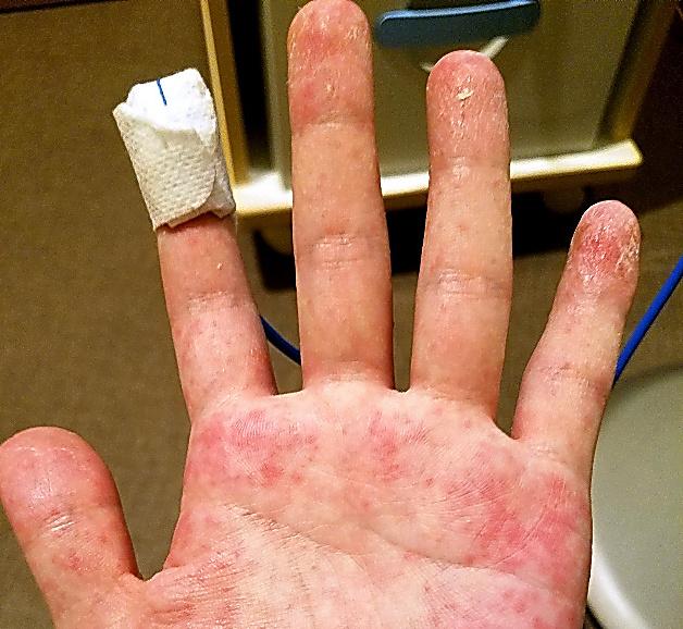 発熱やだるさが特にきつかった4月、男性の手には発疹が目立った=男性提供