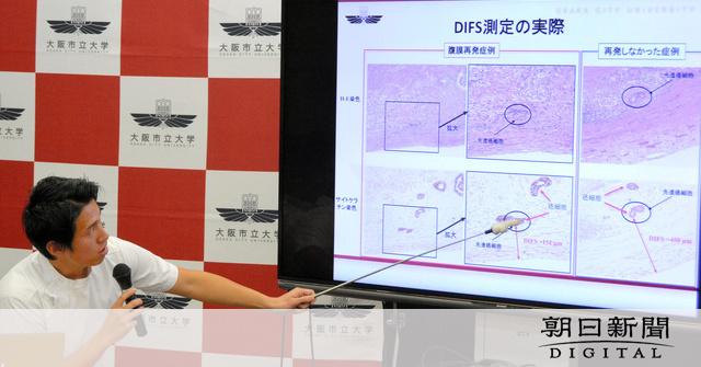 胃がん再発症状、1分で計測 大阪市大、手術後の断面で