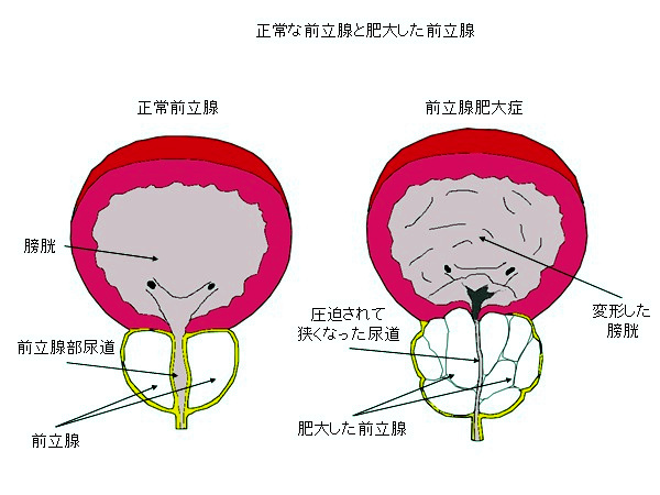 肥大 の 原因 前立腺