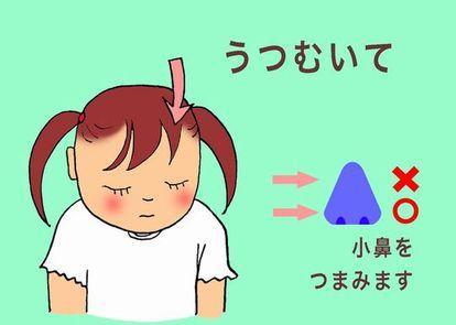 鼻血 が 頻繁 に 出る